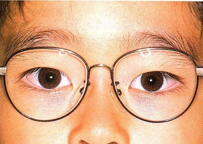 調節性内斜視